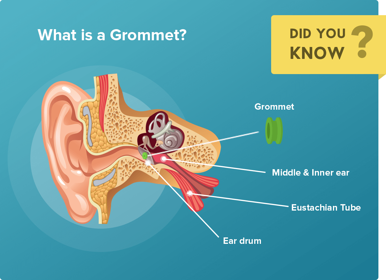 Grommet in ear diagram